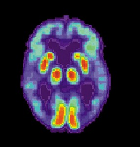 PET scan of a human brain with Alzheimer's disease.
